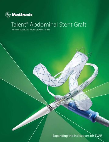 Talent® Abdominal Stent Graft