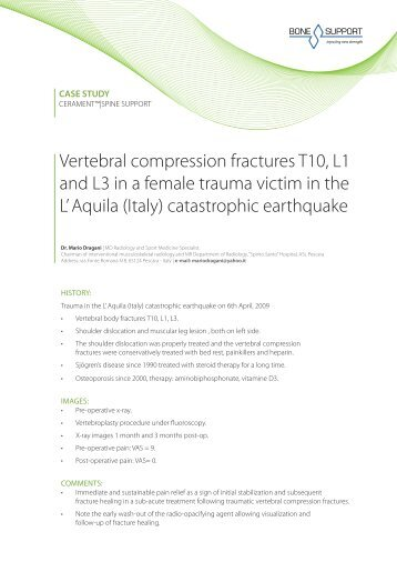 Vertebral compression fractures T10, L1 and L3 in a ... - Bonesupport