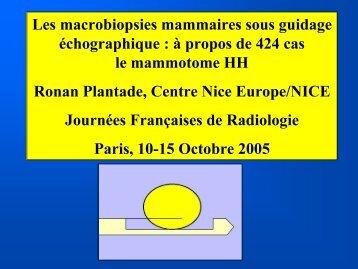 Les macrobiopsies mammaires sous guidage échographique : à ...