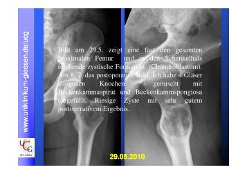 (Microsoft PowerPoint - Fall f\374r Bielenstein-komprimiert.ppt ... - 3GO