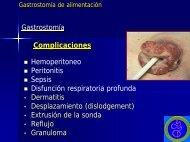 Gastrostomía de Alimentación - Dr. Gerardo Vitcopp - 2° parte - caded
