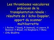 Les thromboses vasculaires précoces de la transplantation rénale ...