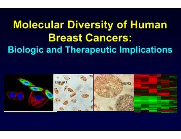 Molecular Diversity of Human Breast Cancers