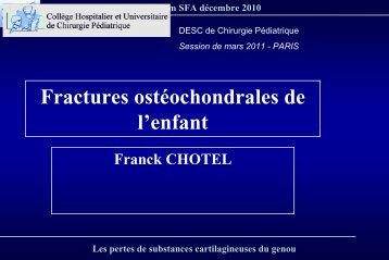 Fractures ostéochondrales - SOFOP