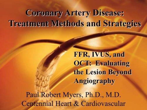 Coronary Artery Disease: Treatment Methods and     - TriStar