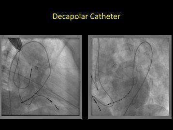 Decapolar Catheter