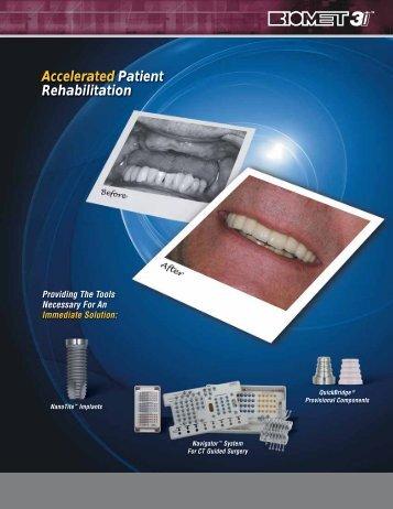 Accelerated Patient Rehabilitation - BIOMET 3i