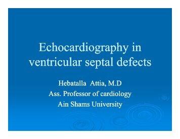 E h di hi E h di hi Echocardiography in ventricular septal defects