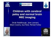 Children with cerebral palsy and normal brain MRI - Tour Hosts Pty ...