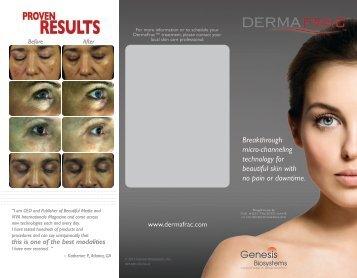 DermaFrac™ Client Brochure - Dermavista.com
