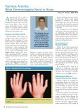 TNF Inhibition in Psoriasis and Psoriatic Arthritis: - Global Academy ... - Page 6