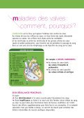 BR75-maladie des valves - Page 4