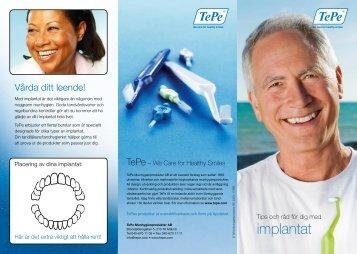 implantat - TePe