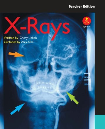 TE X-Rays pages