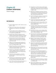 Chapter 65 Lichen Sclerosus
