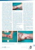 Leczenie owrzodzeń żylnych goleni cz.3 - Spondylus - Page 5