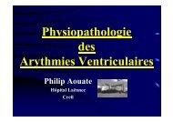 Physiopathologie des Arythmies Ventriculaires