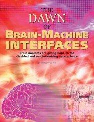 Brain-Machine Interfaces - Biomedical Computation Review