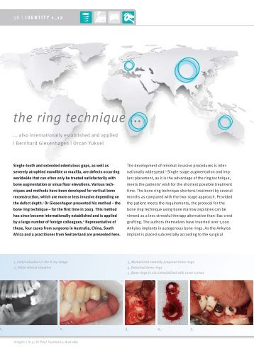 the ring technique ... - DENTSPLY Friadent