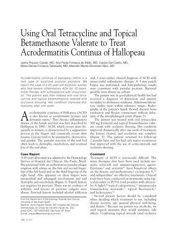 Tetracycline Cheap Online