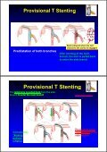 Stenting - Page 7