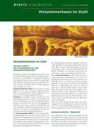 Histaminnachweis im Stuhl - biovis´ Diagnostik MVZ GmbH