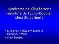 Syndrome de Klinefelter : résultats de l'Echo-Doppler chez 30 patients
