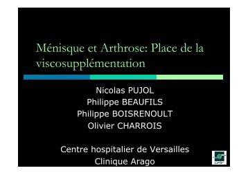 Viscosupplémentation acide hyaluronique genou - ClubOrtho.fr
