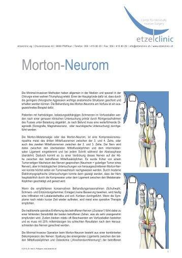 Morton-Neurom - Etzelclinic