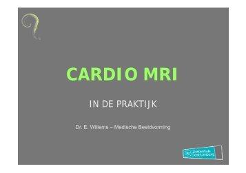 Cardio MRI: in de praktijk