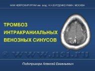 тромбоз интракраниальных венозных синусов - radiographia.ru