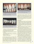 Skjemmende flekker i emaljen behandlet med mikroabrasjon og ... - Page 2