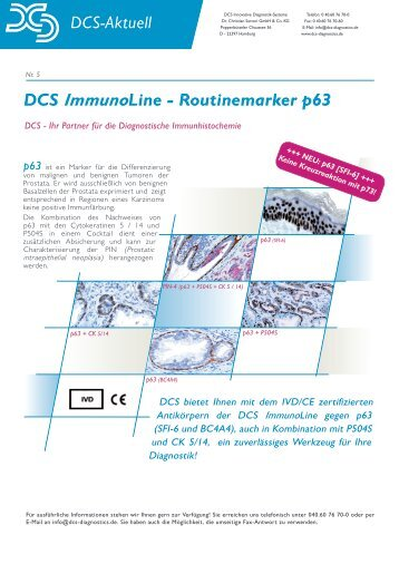 DCS ImmunoLine - DCS - Innovative Diagnostik-Systeme