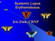 Systemic Lupus Erythematous