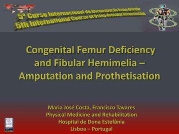 Congenital Femur Deficiency and Fibular Hemimelia – Amputation ...