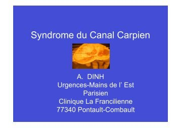 Syndrome du Canal Carpien - ClubOrtho.fr