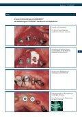 CYTOPLAST® Non Resorb Synthetisch und sicher - Seite 7