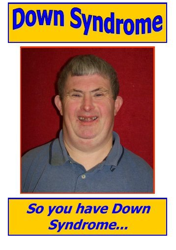 So you have Down Syndrome... - Easyhealth.Org.Uk