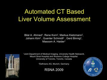 Automated CT Based Liver Volume Assessment - Definiens