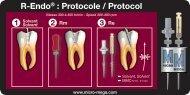R-Endo® : Protocole / Protocol - Micro Mega