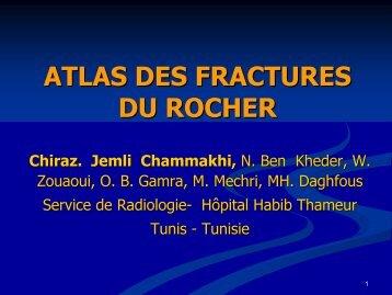 ATLAS DES FRACTURES DU ROCHER