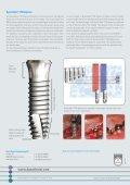 Dyna Helix® TM Implant - Dyna Dental - Page 2