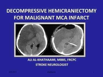 decompressive hemicraniectomy for malignant mca ... - RM Solutions
