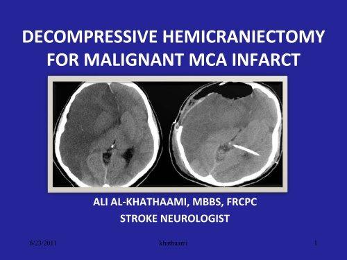decompressive hemicraniectomy for malignant mca rm solutions
