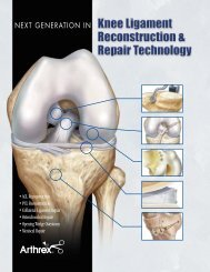 The Next Generation in Knee Ligament Reconstruction ... - Ortomedic