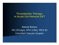 Thrombolytic Therapy in Acute Ilio-Femoral DVT - RM Solutions