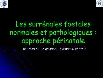 Les surrénales foetales normales et pathologiques : approche ...