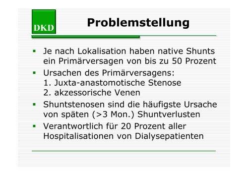 Strutz - Shuntstenose [Compatibility Mode] - Berliner DialyseSeminar