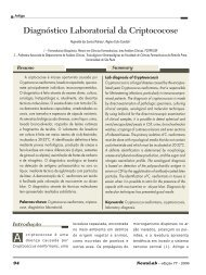 Diagnóstico Laboratorial da Criptococose - NewsLab