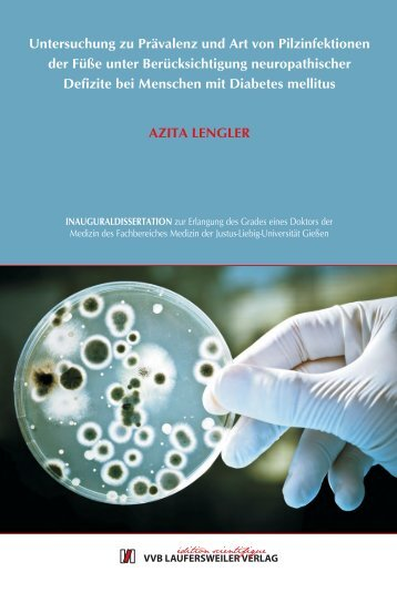 Untersuchung zu Prävalenz und Art von Pilzinfektionen der Füße ...